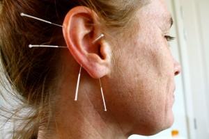 Ooracupunctuur / Auriculo Acupunctuur Praktijk Tilburg