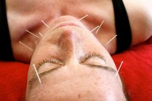Cosmetische Acupunctuur Acupunctuur Praktijk Tilburg
